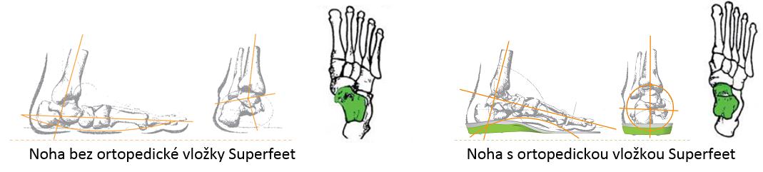 superfeet ortopedické vložky